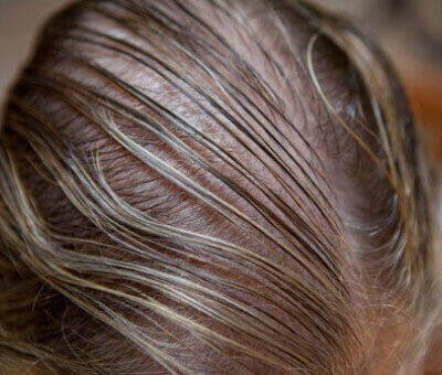 Java Talk: Are You Suffering From Hair Loss?